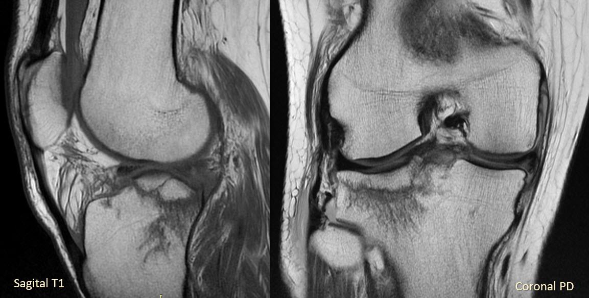 ultrasonografie genunchi refacerea luxației genunchiului