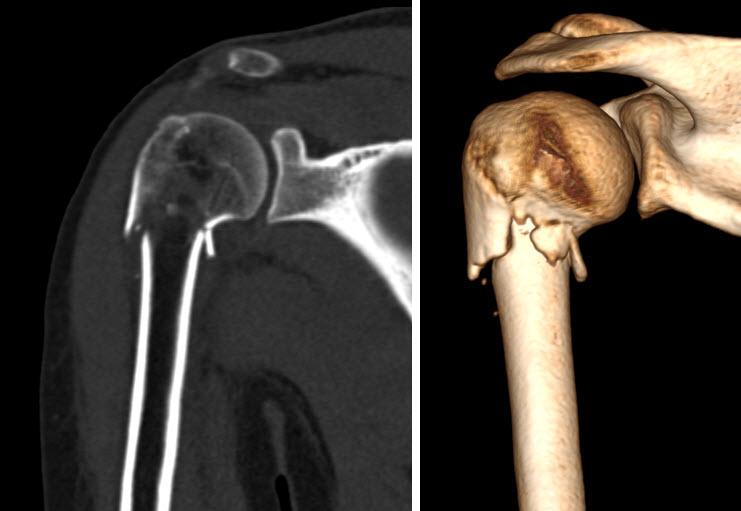 artroză tratament cu călcâi de artrită