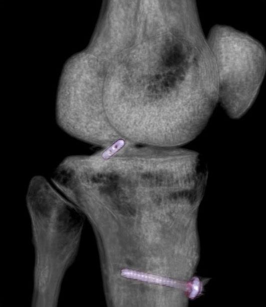 Dureri de genunchi computer tomograf