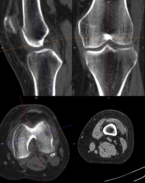 tomografie computerizată a articulațiilor genunchiului)